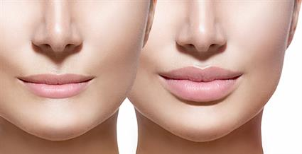 bigstock-Before-and-after-lip-filler-in-86575949
