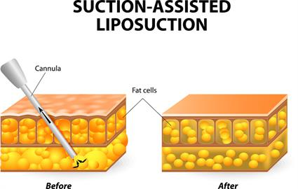 bigstock-liposuction-77342159