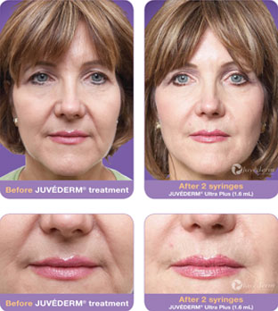 Look Younger without surgery using injectable fillers